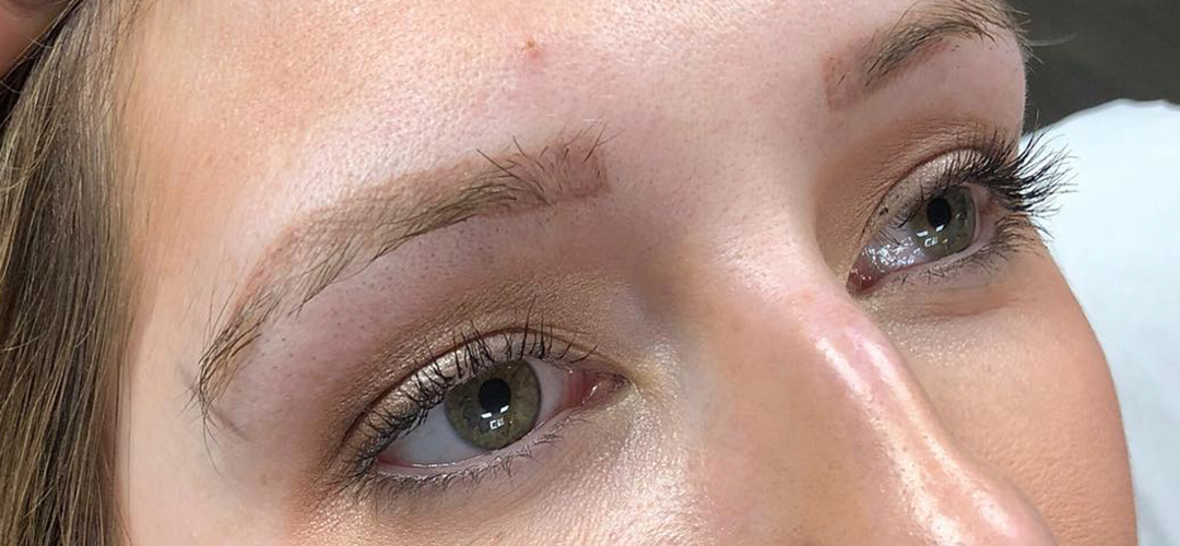 Microblading2Before
